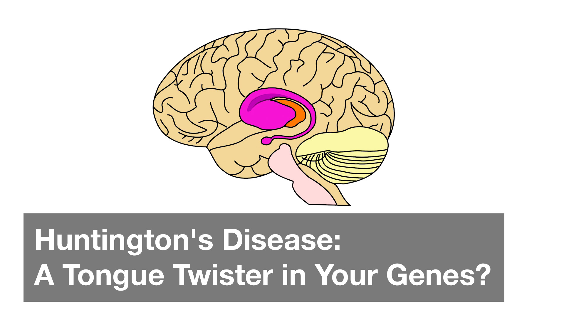Huntington's Disease: A Tongue Twister in Your Genes?